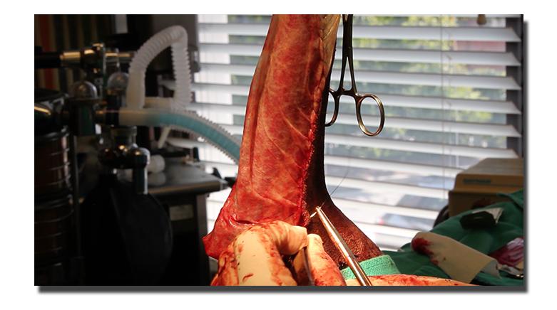 BioSIS Repair - Soft Tissue Sarcoma