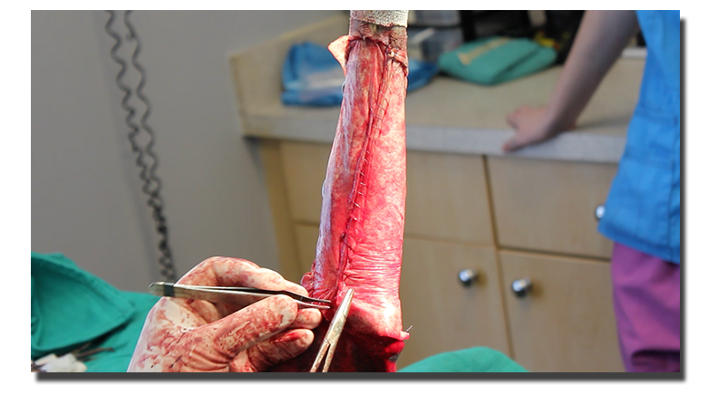 BioSIS Repair - Soft Tissue Sarcoma